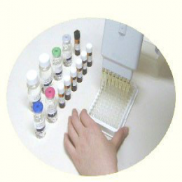 Human Rubella Virus IgM ELISA Kit